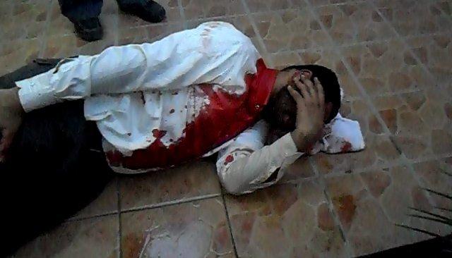 Injured protestor, Manama, 14 February 2011