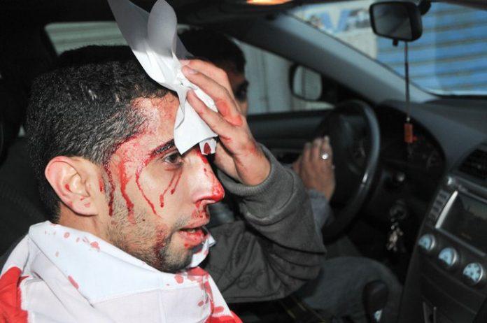 Injured demonstrator in Manama, 16 February 2011